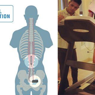 What is Epidural Stimulation - Epidural Stimulation