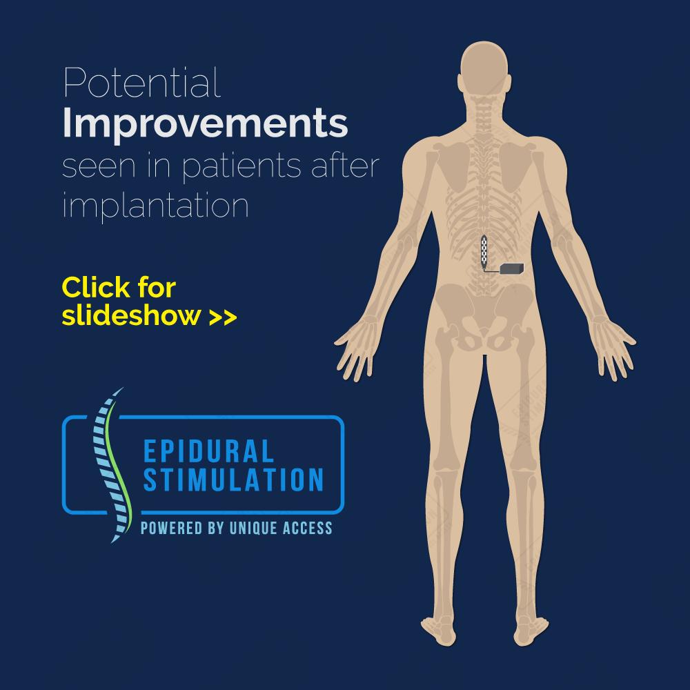 Improvement - Epidural Stimulation