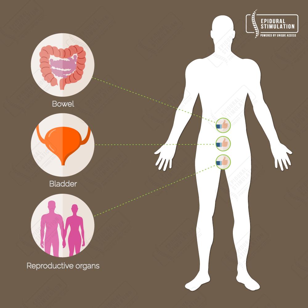 Improvement Bowel and Bladder control - Epidural Stimulation