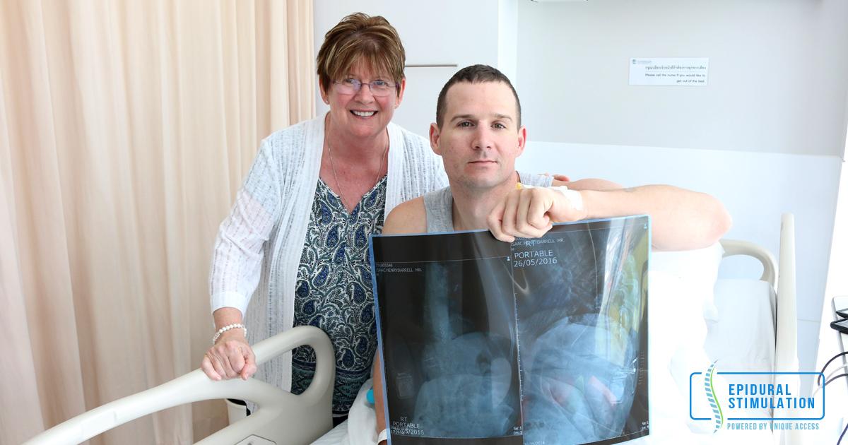 ES Therapy to treat Spinal Cord Injury - Epidural Stimulation