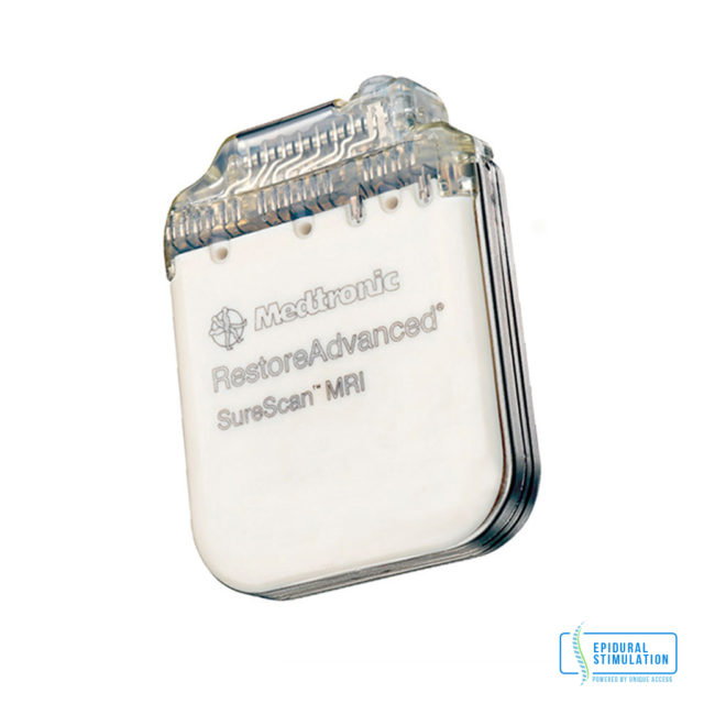 Medtronic Device - Epidural Stimulation