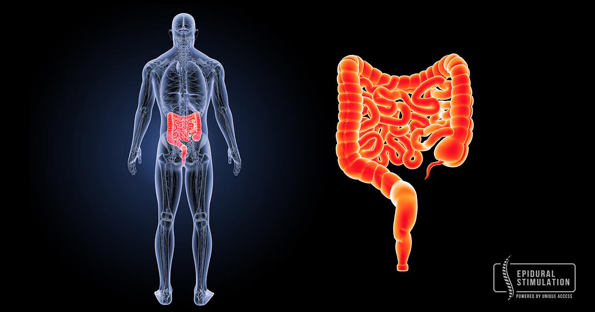 Epidural Stimulation for bladder and bowel improvement - Epidural Stimulation Now